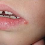 Effectieve Oplossingen voor het Herpes Simplex Virus (HSV)