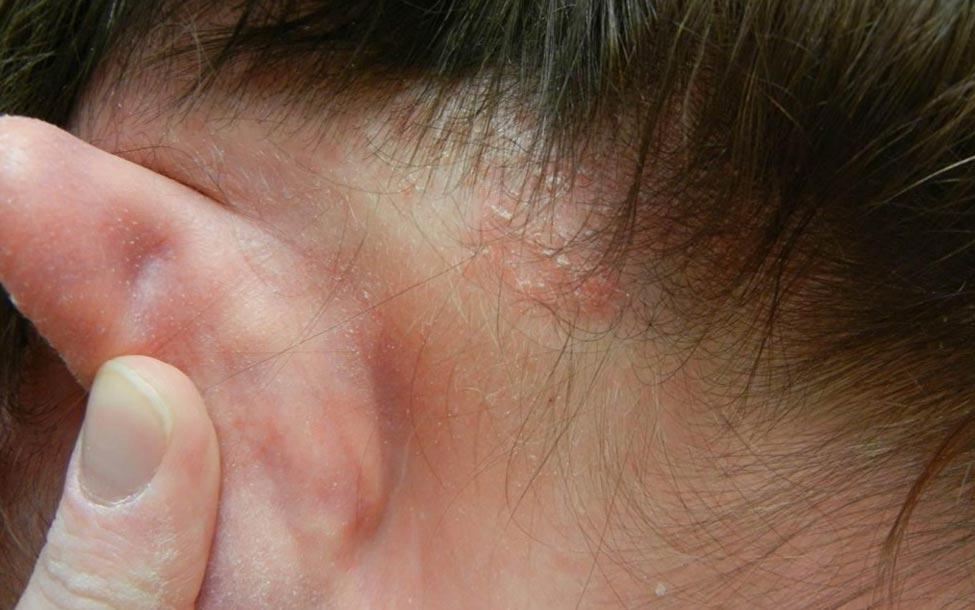 Psoriasis op je Hoofdhuid Verbannen? Effectieve Tips!