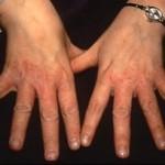 12 Tips om Eczeem bij de Handen te Behandelen